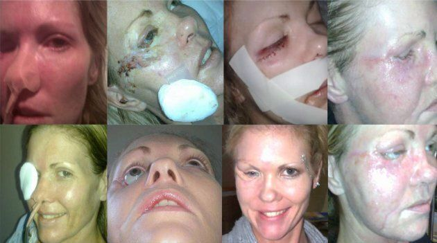 A collage of different stages of Vanessa Carter's recovery over nine years. Results from various surgeries and complications as well as the damage the infection made after eating much of the tissue away under the eye.