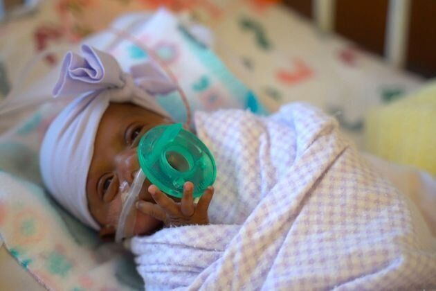 World's Tiniest Baby Beats Odds After Being Born Weighing Around The Same As An