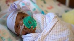Γεννήθηκε μόλις 245 γραμμάρια και αποτελεί το μικρότερο μωρό στο