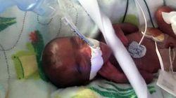 Il neonato più piccolo del mondo torna a casa. Pesava 245 grammi, quanto una