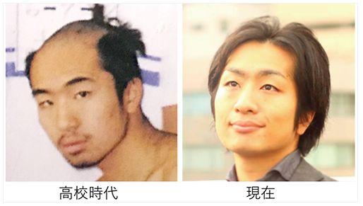 駒崎弘樹さんは、自身の高校時代の写真と現在の写真を公開した