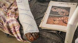 Mordeduras de serpiente, la epidemia