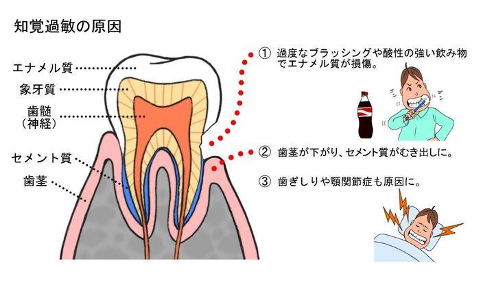歯磨きが強すぎるとエナメル質が削れ、知覚過敏になる可能性が出てくるが、一方で歯が汚れたままだと知覚過敏だけでなく、虫歯にもなりやすくなるので、口の中を清潔にしておくことが大切だ