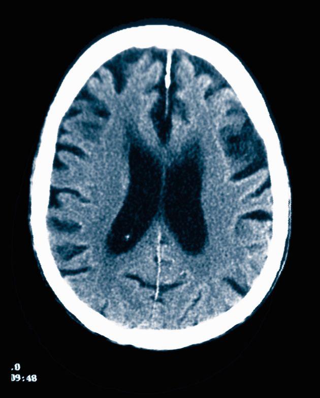 화이자는 왜 알츠하이머 치료제 개발의 '단서'를