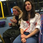 Woman Attacked On London Bus Condemns Response To Photos Of Her After Homophobic