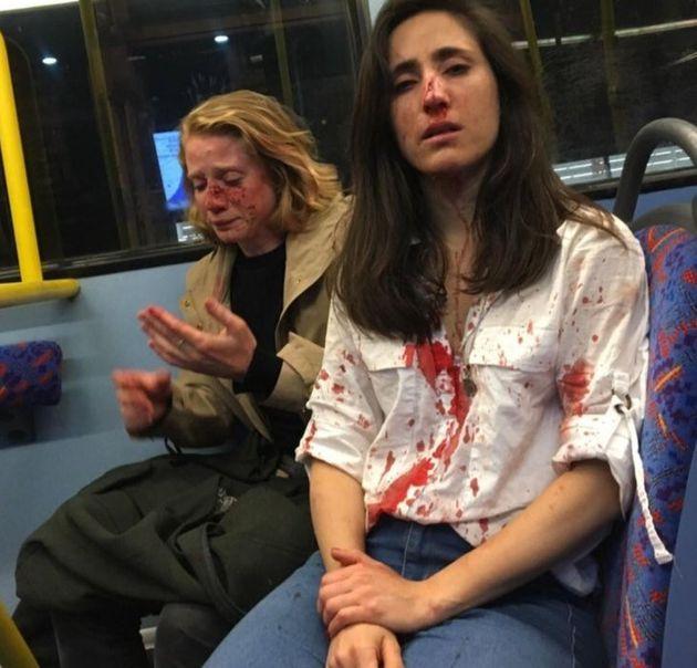 Balordi picchiano coppia lesbica su un bus di Londra.