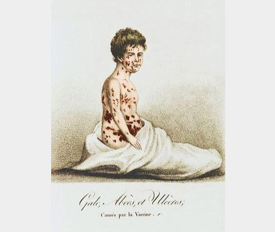 Ασθενής με ευλογία τέλη του 19ου αιώνα.