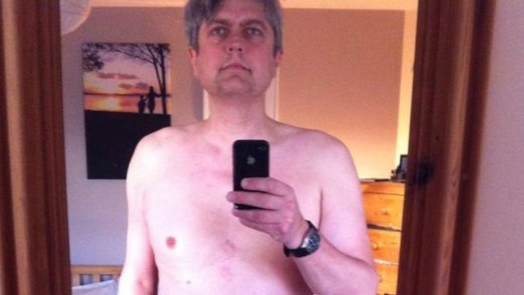 Prostate Cancer Patient With Colostomy Bag Shares Underwear Selfie