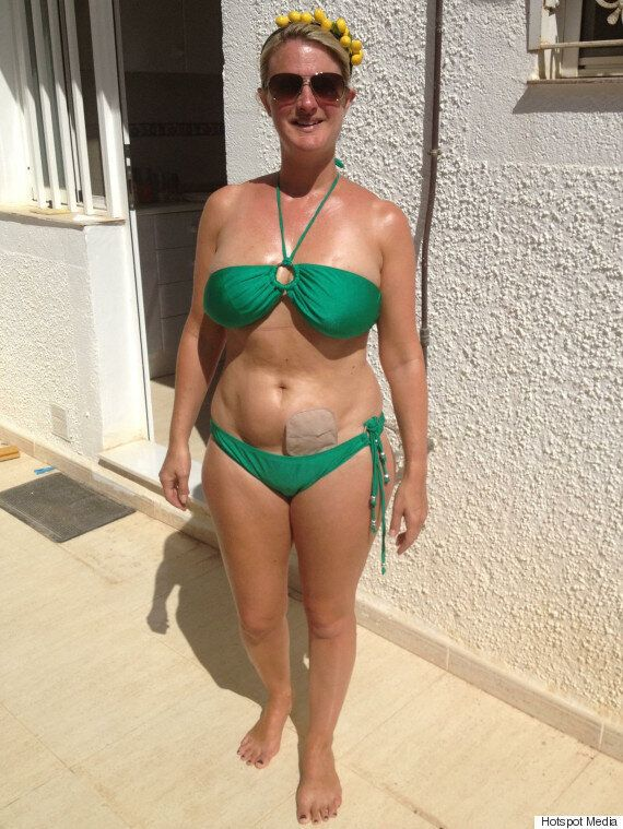 Suzanne Dore Blogger With Bowel Cancer Shares Colostomy