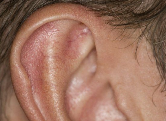 Woman Left Bedbound By Tiny Hole In Ear Reveals How It's