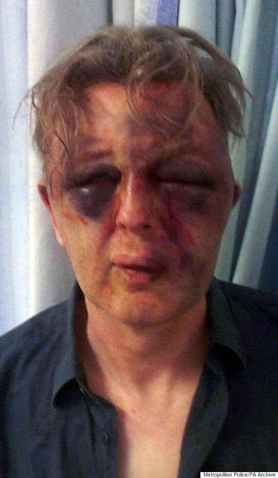 Tommy Robinson Confronted At Pegida Rally By Paul Kohler, Who Was Savagely Beaten By