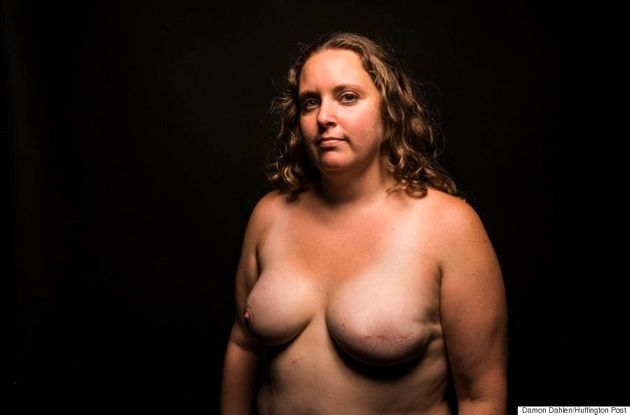 24 Women Bare Their Scars To Reveal The Beauty In
