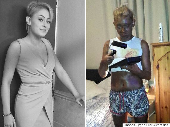 Woman Uses Paint Roller To Apply Fake Tan, It Goes Horribly