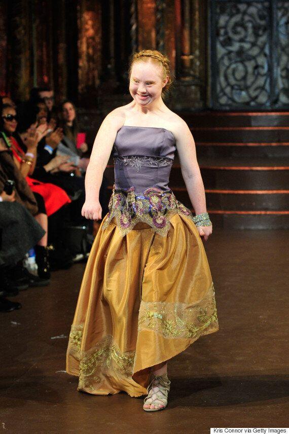 Josefa Da Silva Catwalk Champions Diversity At New York Fashion