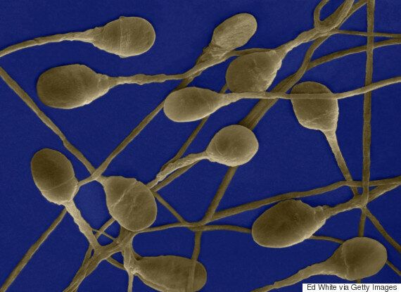 National Sperm Bank Gains Just Nine Registered Donors In A