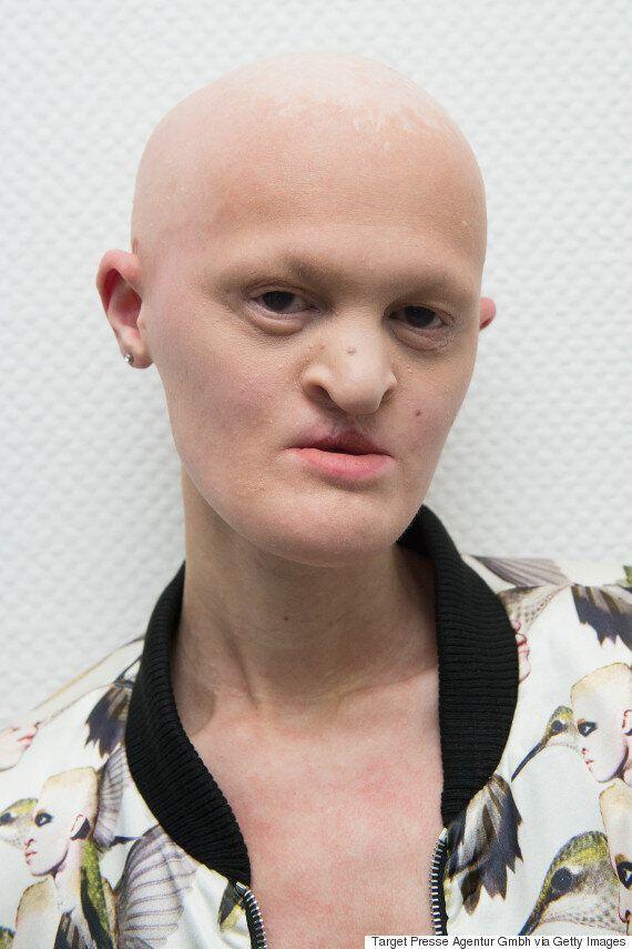Melanie Gaydos: Model With Ectodermal Dysplasia Is Making