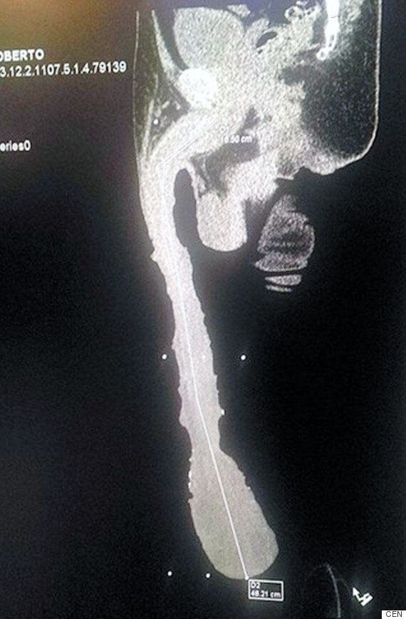 Largest Penis In The World Is Huge Headache For Roberto Esquivel