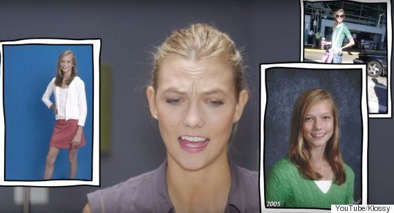 Karlie Kloss Shares 'Awkward' Teenage Photos But We Think She Actually Looks