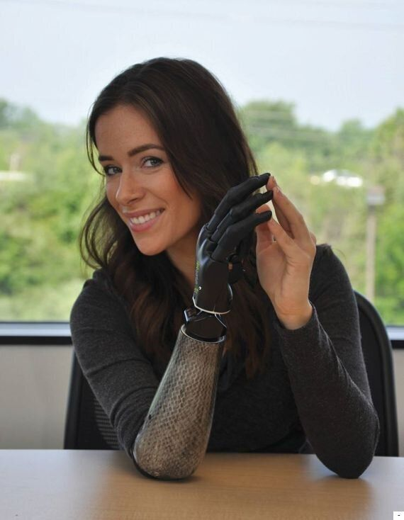 Rebekah Marine, Model With Bionic Arm Talks To Us About Walking At New York Fashion Week: 'I Am Very