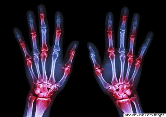 This Drug Free Arthritis Treatment Will Change The Lives Of