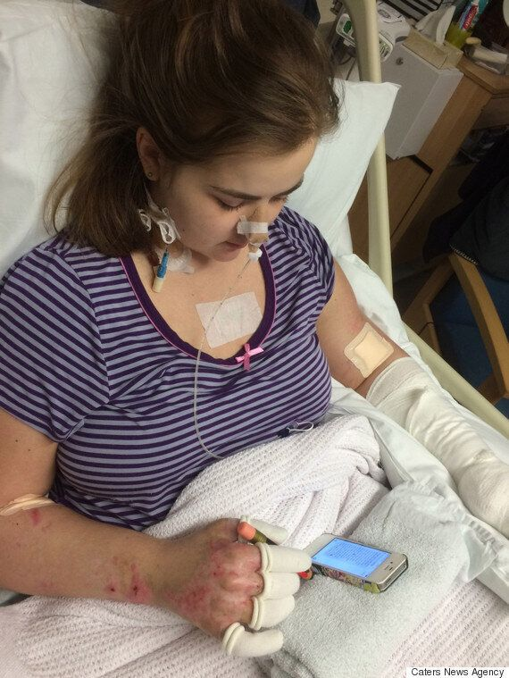Student Loses Her Legs And Fingers After Mistaking Meningitis For Freshers'