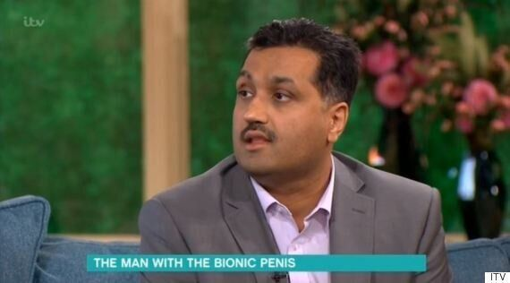'This Morning': Man Without Penis Makes Return Appearance To Reveal His 'Bionic' New
