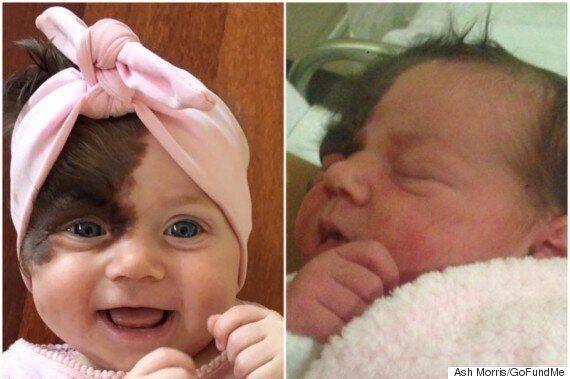 Undergo Operations Hairy Seven Remove Birthmark Baby To Set