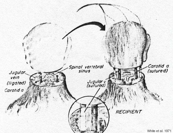 First Human Head Transplant Date Officially Set For