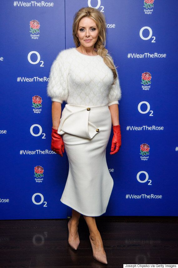 Carol Vorderman Explains THAT Naked Treadmill Incident, Which Left Her Covered In Burns And