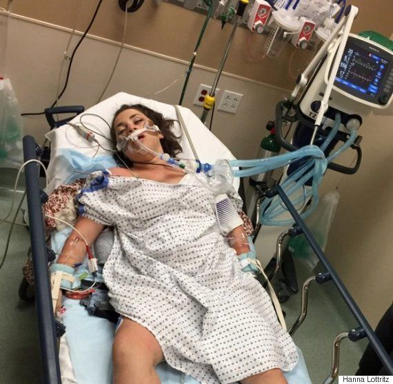 'The Doctors Thought I Was Brain Dead' Student Hanna Lottritz Warns Of Binge Drinking