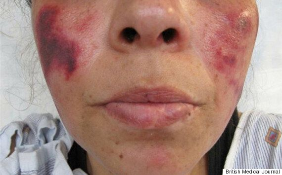 Dodgy Cocaine Cut With Powerful Horse De-Wormer Is Causing People's Skin To