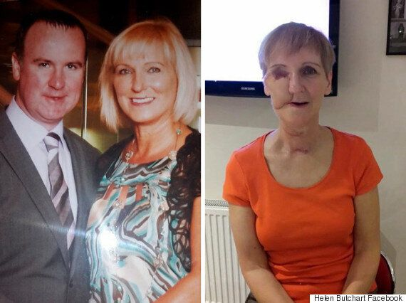 Brave Woman Reveals Devastating Effects Sinus Cancer Had On Her Face