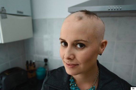 dating show girl with alopecia