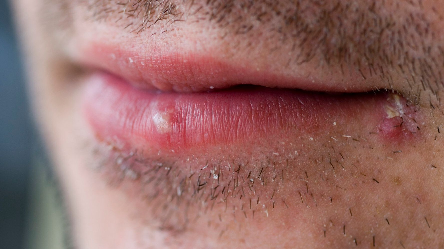 Herpes Virus Could Successfully Treat Skin Cancer, Study Suggests