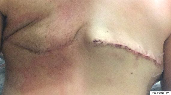 Breast Cancer Survivors Show Surgery Scars In Response To M S And Breast Cancer Now S Showyourstrap Campaign Huffpost Uk Life