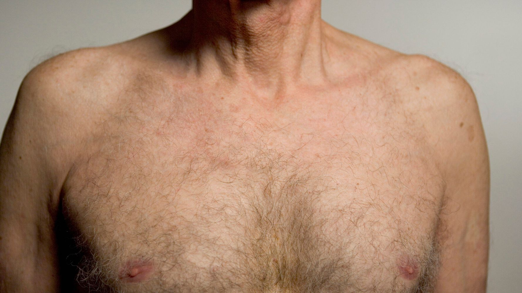 Male Breast Cancer How To Spot The Symptoms Plus What Happens