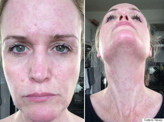 I'm Allergic To Life': Woman With Chronic Urticaria Comes