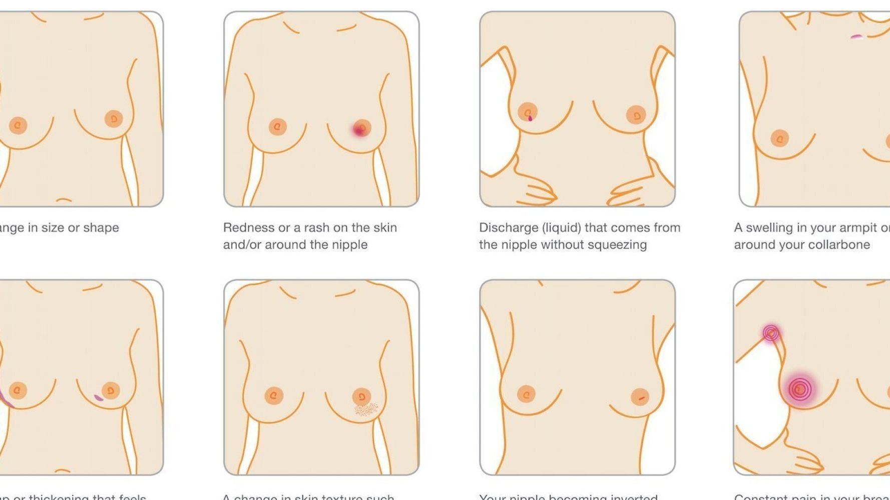 Breast Cancer Symptoms Are More Than A Lump Here Are The Other
