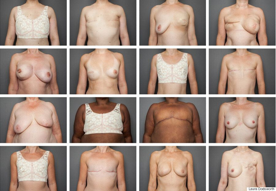 Stella McCartney Shares Powerful Mastectomy Photos To Raise Awareness Of Breast Cancer