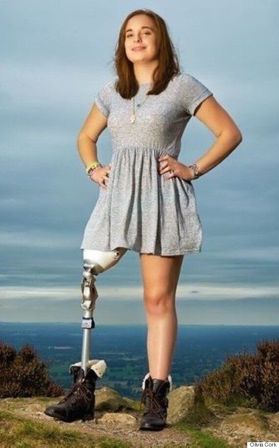 Teen With Bionic Leg Deemed 'Not Disabled Enough' By DWP Forced To Raise Funds To Keep Mobility