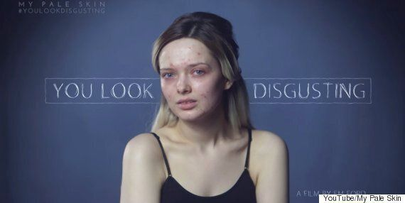 Woman Gets Trolled For Acne YouTube Tutorials, Rises Above Them In Spectacular