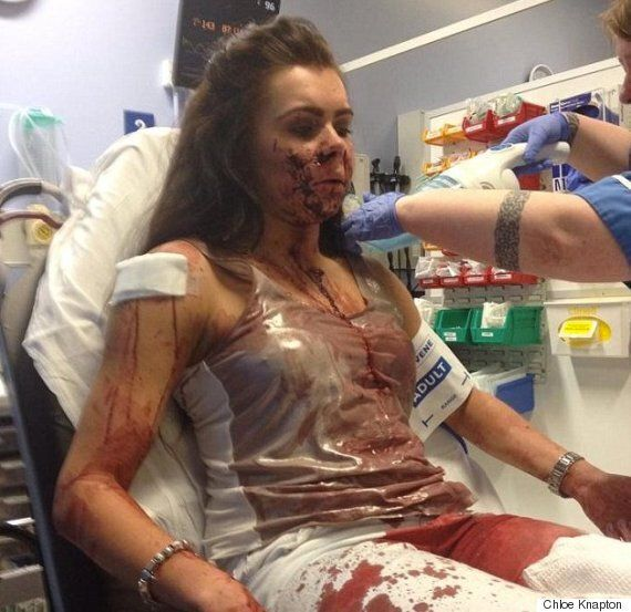 Chloe Knapton, 21, Left Unable To Smile Or Eat After Horrific Glassing (GRAPHIC