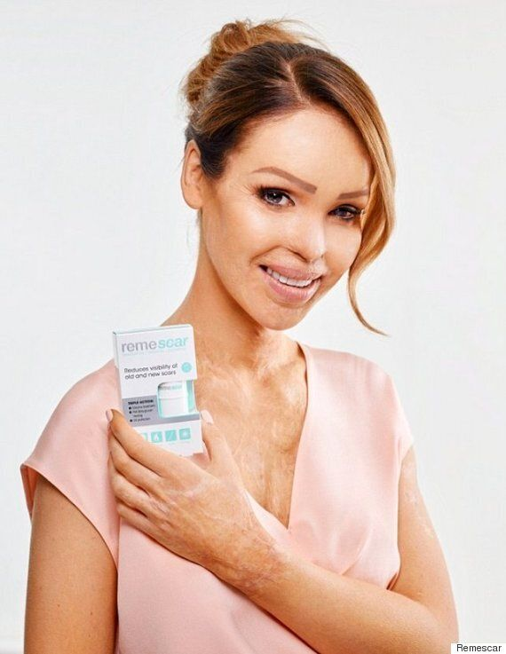 Katie Piper Stars In New #Skinstory Beauty Campaign For Remescar