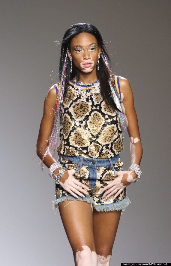 Inspirational Model Winnie Harlow With Vitiligo On How She Overcame Bullying After Someone 'Mooed' At