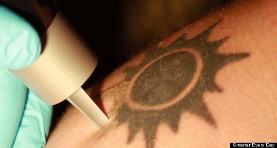 Watch The Horrifying Reality Of Having A Tattoo Removed With