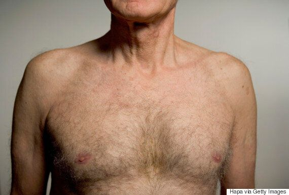 Men With High Levels Of Oestrogen More Likely To Develop Male Breast Cancer Than Other Men, Study Finds | HuffPost Life