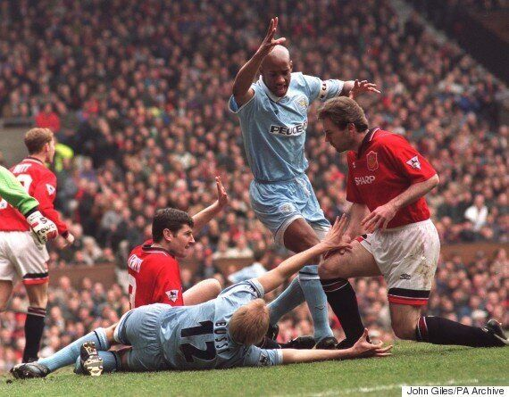 Footballer David Busst Reveals Scars From Football's Most Gruesome