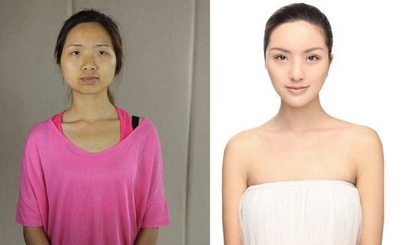 Before And After: This Is What The Extreme Plastic Surgery Craze In