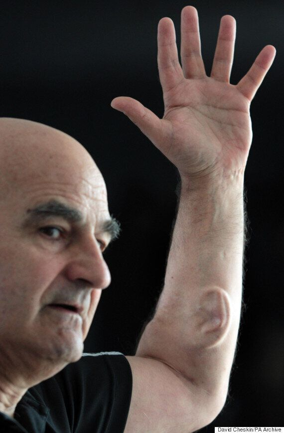 Australian 'Artist' Stelarc Grows Artificial Ear On His Arm To Help Society Listen In On His