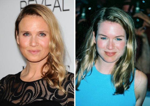 Renee Zellweger's 'Unrecognisable' Looks Cause A Stir At Elle